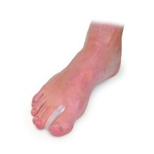 Silicone toe separators