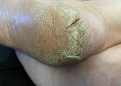 Callus before treatment - right