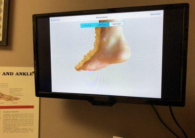 Foot image 1