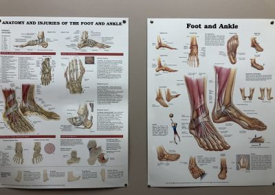Foot posters